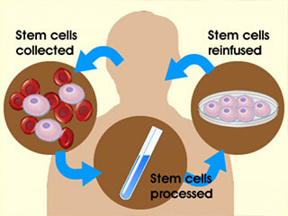 Significance Of Stem Cell Therapy In The Current Scenario