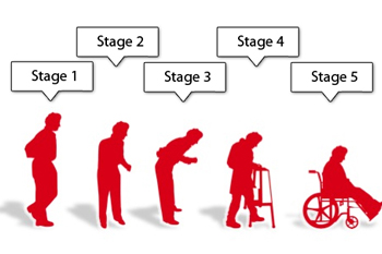 Parkinsons_Stages