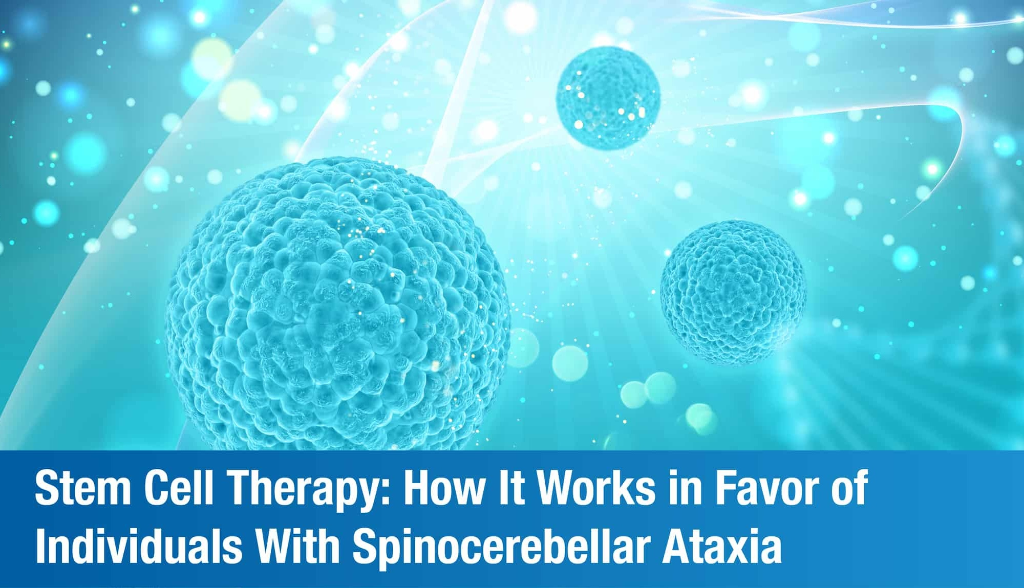 Stem Cell Therapy: How It Works in Favor of Individuals With Spinocerebellar Ataxia