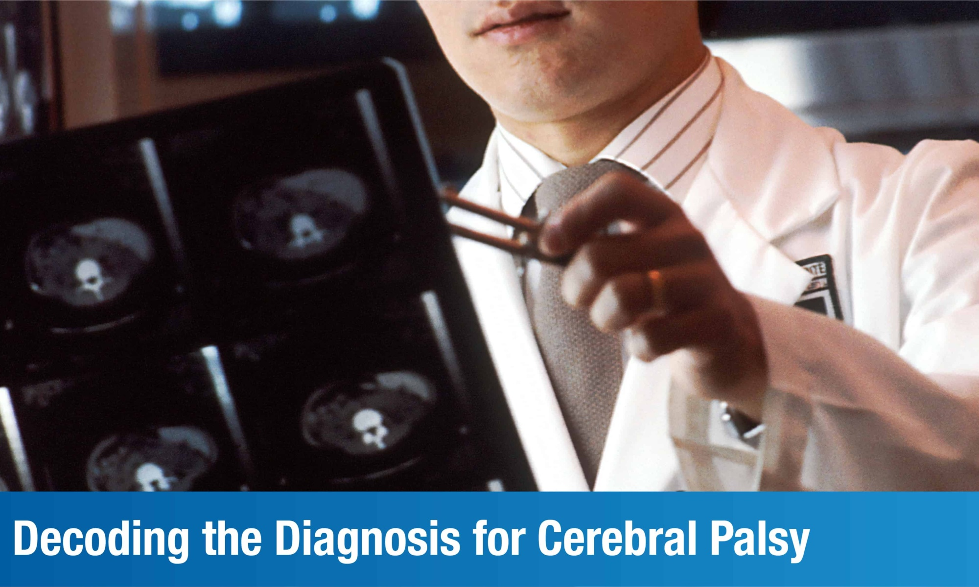 Decoding the Diagnosis for Cerebral Palsy